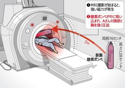 バ韓国ならではの医療事故で害獣1匹即死ww
